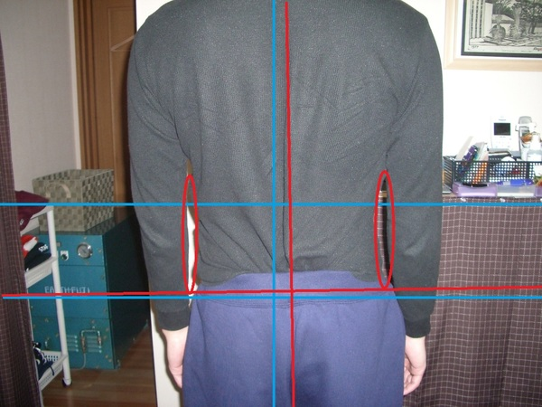 長く続く腰痛の改善・・・サムネイル